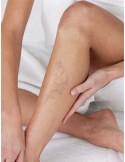 Esclerosis de varices