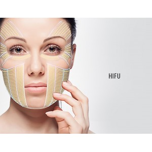 HIFU lifting facial y corporal